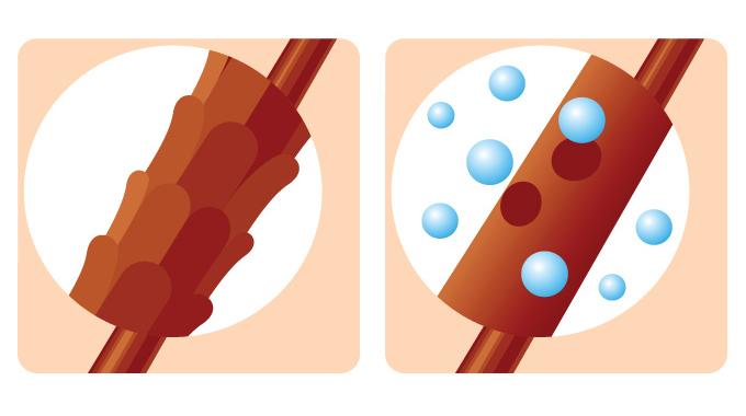 chropowata powierzchnia włosa - schemat